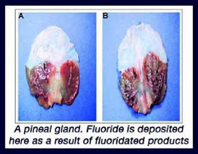 pineal_fluoride1